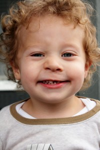 toddler with missing front tooth